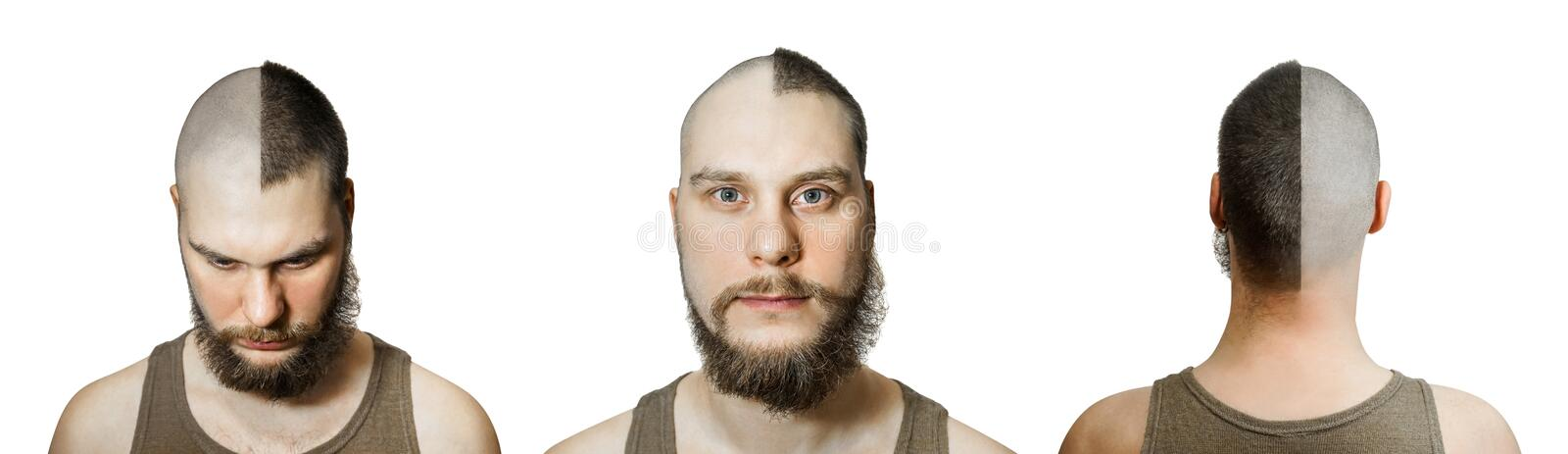 Half trimmed bald guy on isolated background. man hold comb and clipper. Concept of hair loss, alopecia, transplantation. Half trimmed bald guy on isolated stock images