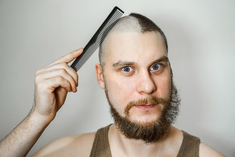 Half trimmed bald guy on isolated background. man hold comb and clipper. Concept of hair loss, alopecia, transplantation. Half trimmed bald guy on isolated royalty free stock photography