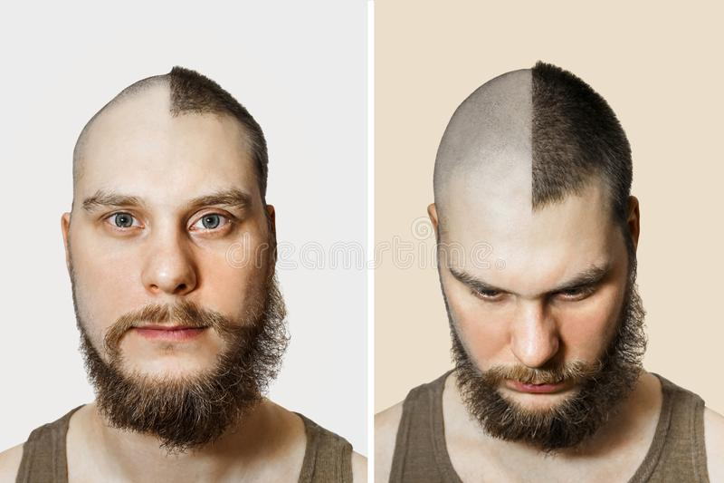 Half trimmed bald guy on isolated background. man hold comb and clipper. Concept of hair loss, alopecia, transplantation. Half trimmed bald guy on isolated stock image