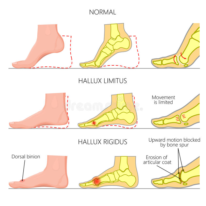 Hallux rigidus. Illustration (diagram) of normal function, limited motion and rigid deformity (with degenerative arthritis) of the first metatarsophalangeal vector illustration