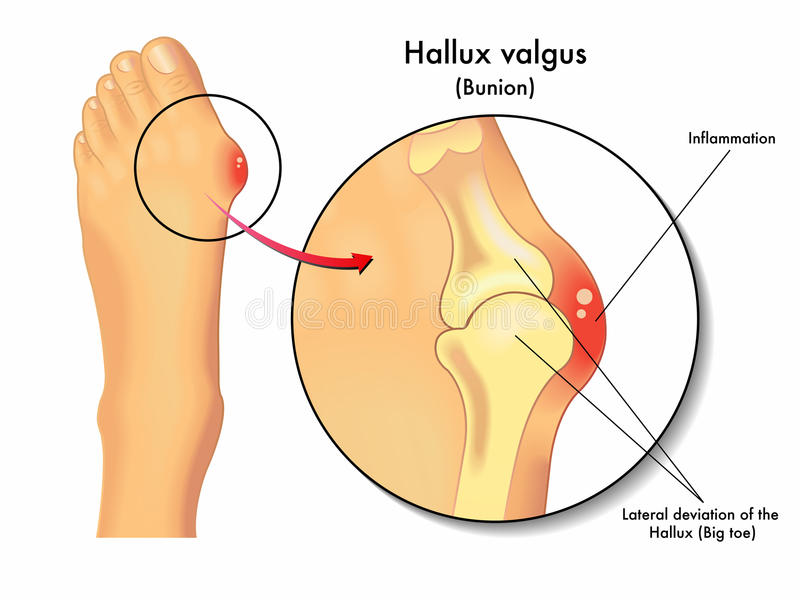 Hallux valgus stock illustrationer