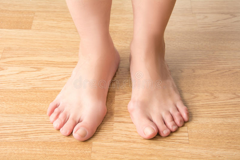 Hallux valgus, bunion in foot, pain in the legs royalty free stock image