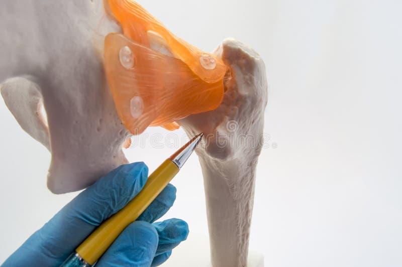 Hals av lårbenhöften - ett ställe av det vanliga brottet av lårbenbegreppsfotoet Doktorn av ortopedisk kirurgi indikerar på hals  royaltyfri foto