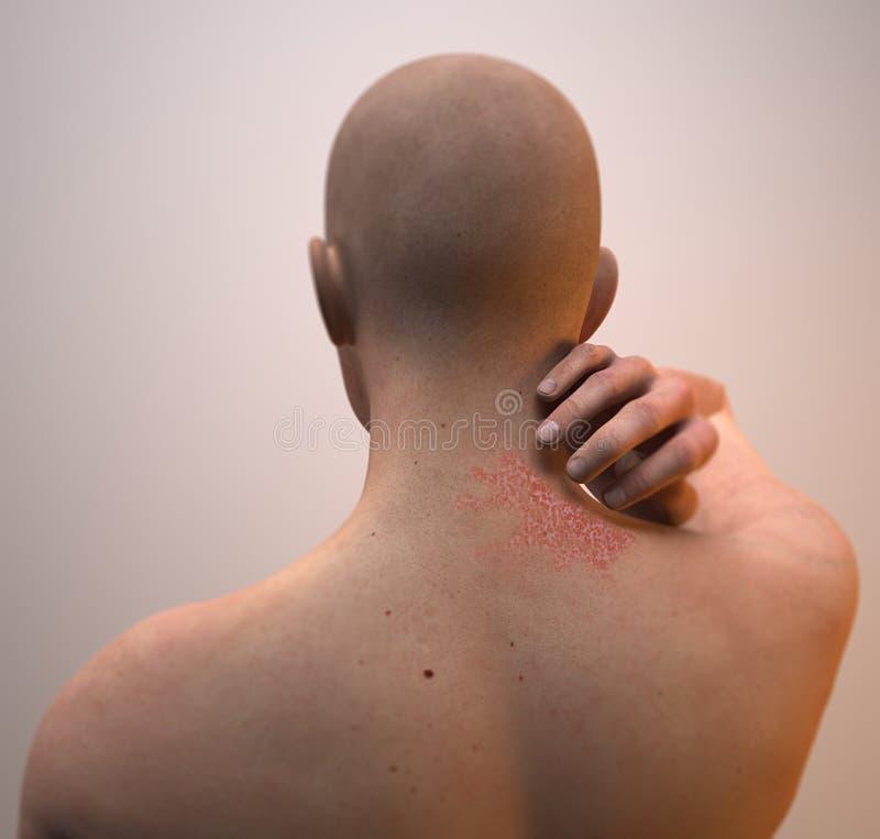 Halsdermatit, hud, brinnande inflammation royaltyfri illustrationer