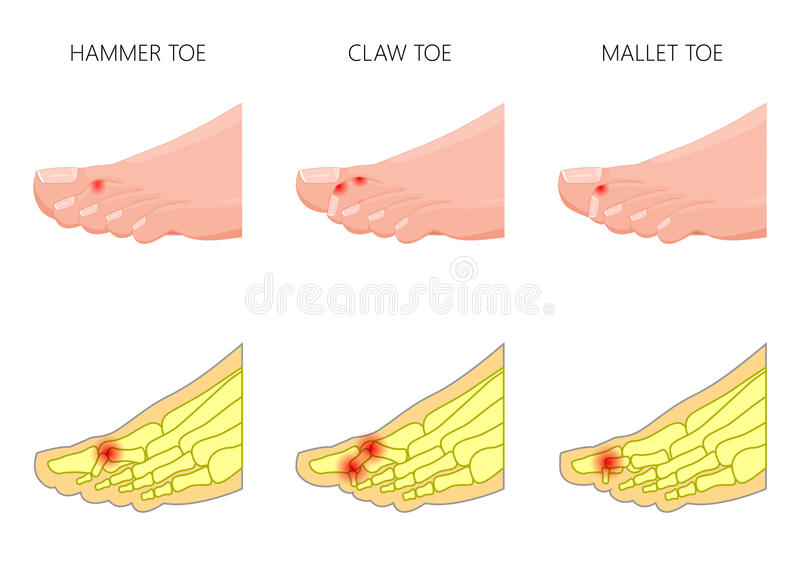 Hammer_claw_mallet_toe vektor illustrationer