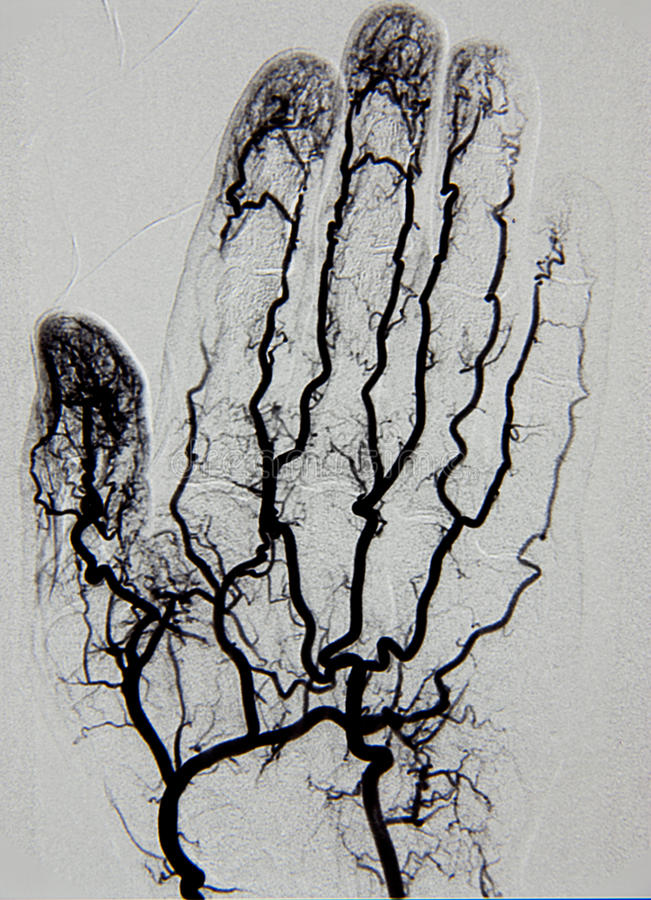 Hand Angiography, Arteriography Royalty Free Stock Photo