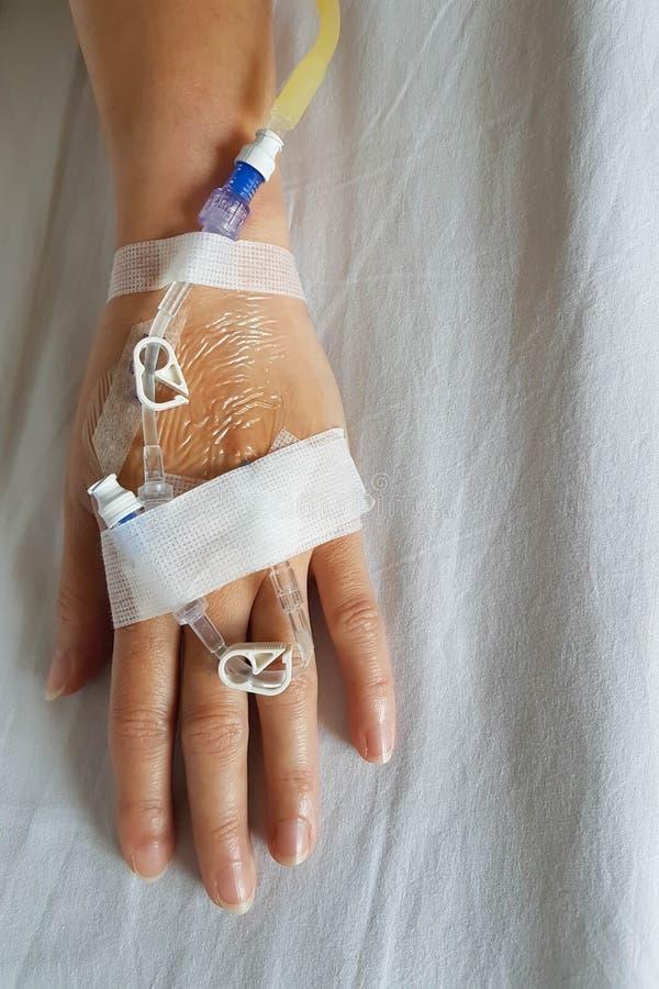 Hand av patienten med droppglassavkokvisaren för intravenös avkok i närbild arkivbilder