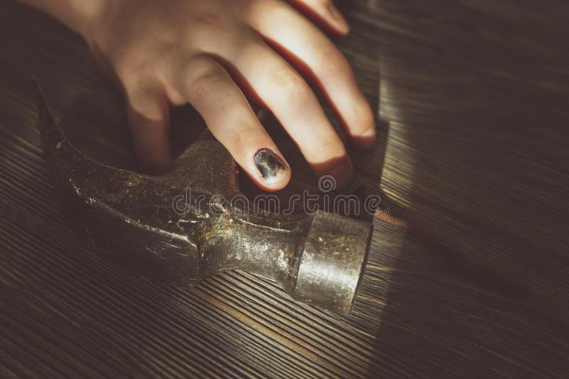 Hand with blackened thumbnail over a hammer stock photography