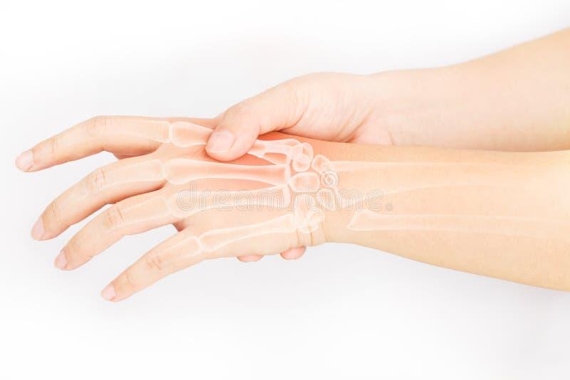 Download Hand bone pain stock image. Image of marrow, carpal, ache - 78200987