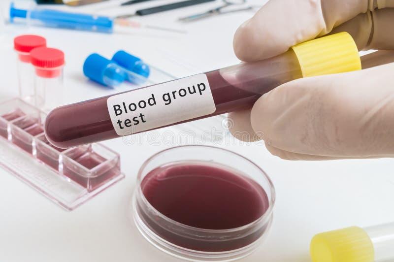 Hand des Wissenschaftlers hält Reagenzglas mit Blut für Bloof-Gruppentest stockbild