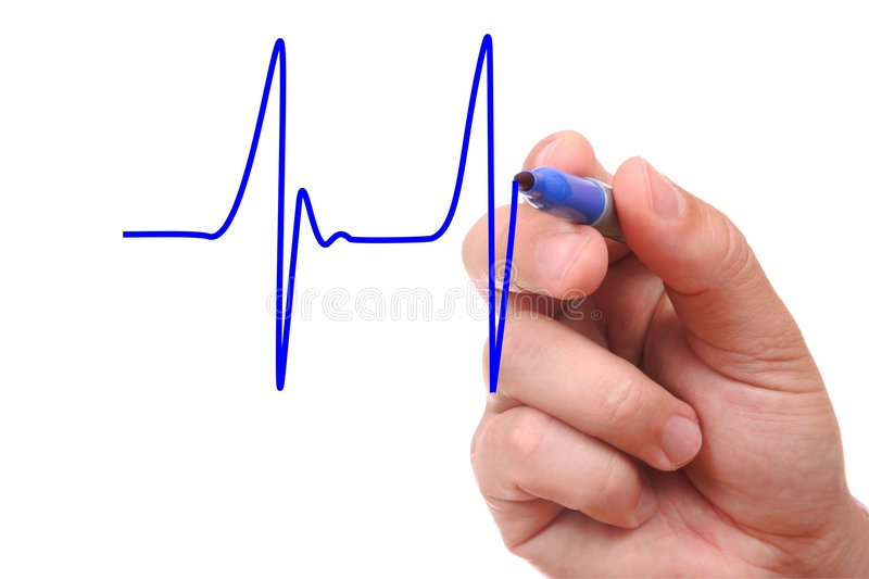 Drawing Line Graphs By Hand : Hand drawing ecg graph stock photo image of diagram