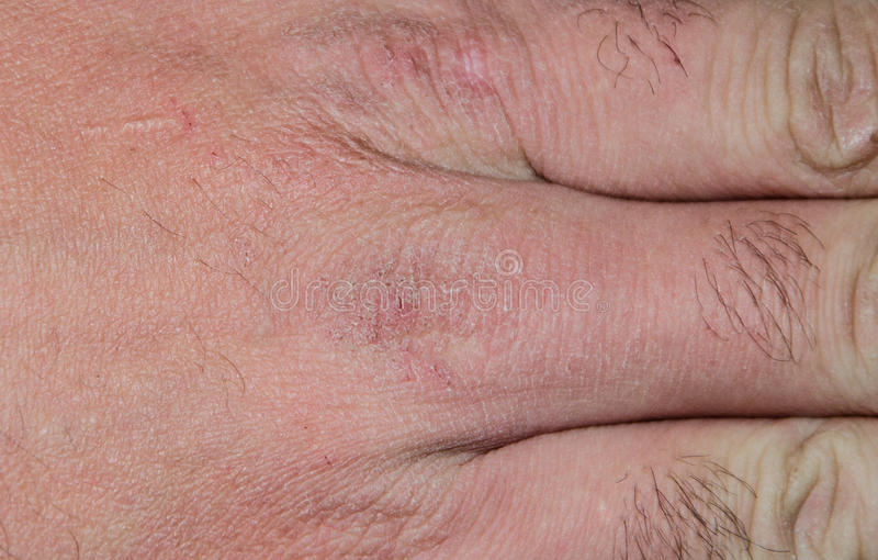 Hand dry cracked skin in the winter royalty free stock images