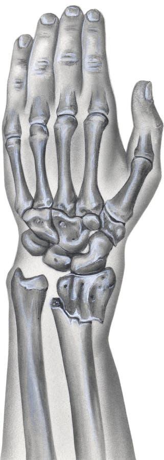 Hand en Pols - Gebroken Straalbeen stock illustratie