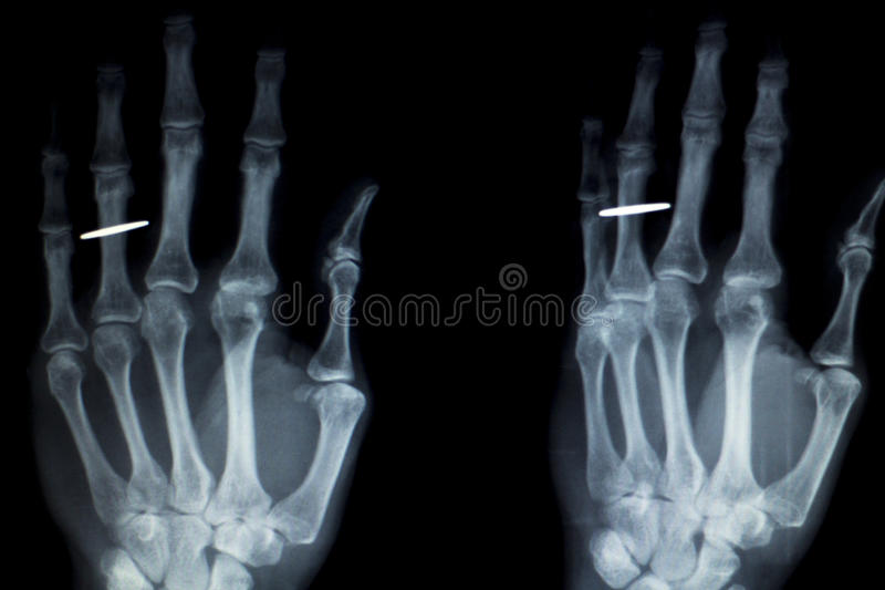 Hand Fingers Implant Xray Scan Stock Photo Image Of Anatomy