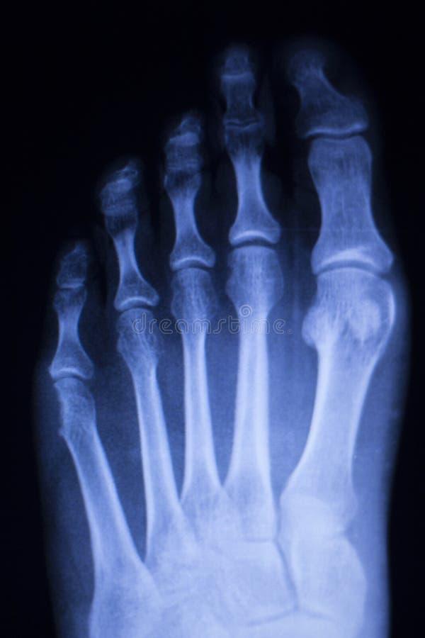 Hand fingers thumb wrist xray scan stock photos
