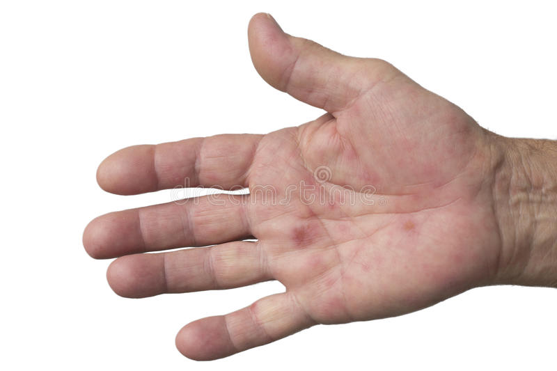 Hand, foot and mouth disease stock image
