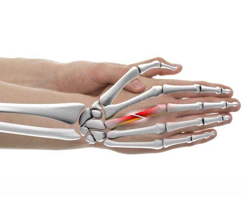Hand Gebroken die Beenmannetje - Studio met 3D illustratieisol wordt geschoten stock illustratie