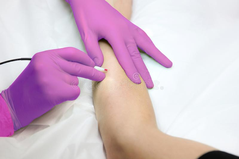 Hand hair removal with a large electric epilator close-up royalty free stock photos
