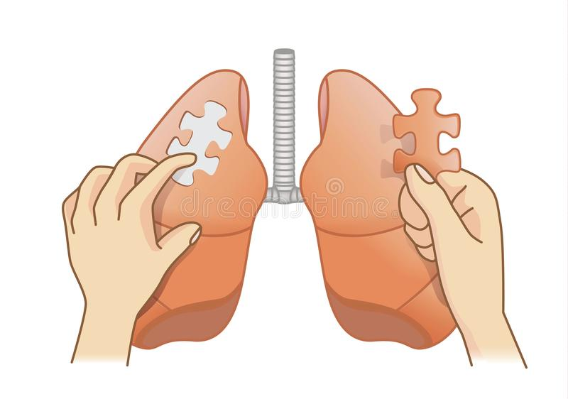 Hand holding last piece of jigsaw puzzle for Lung treatment. stock illustration