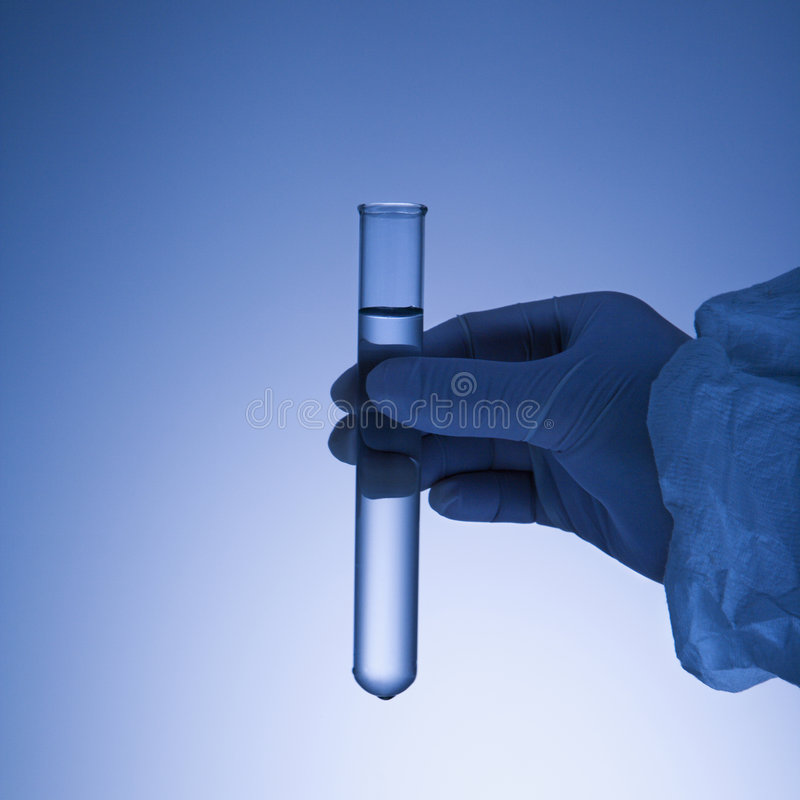 Free Hand Holding Test Tube. Royalty Free Stock Image - 2851266