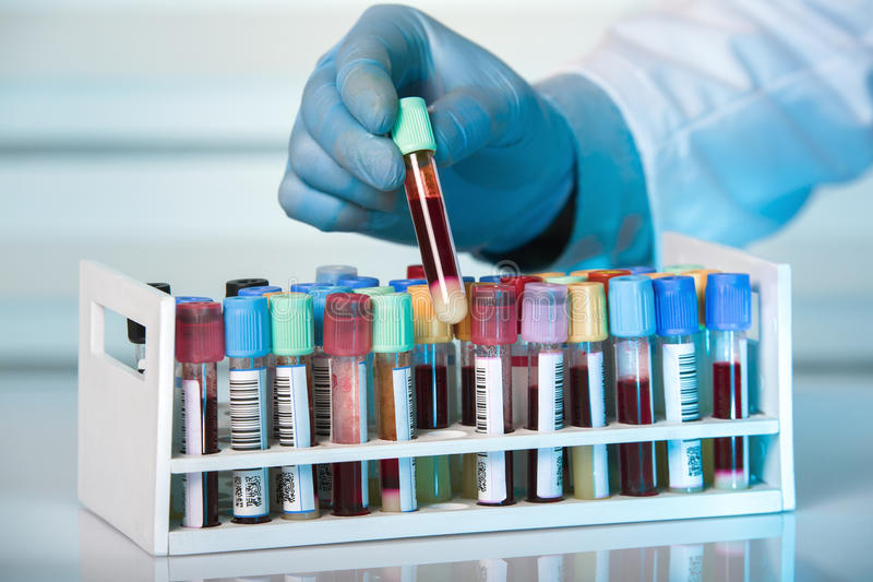 Hand holding tube of rack with blood test tubes in clinical lab royalty free stock images