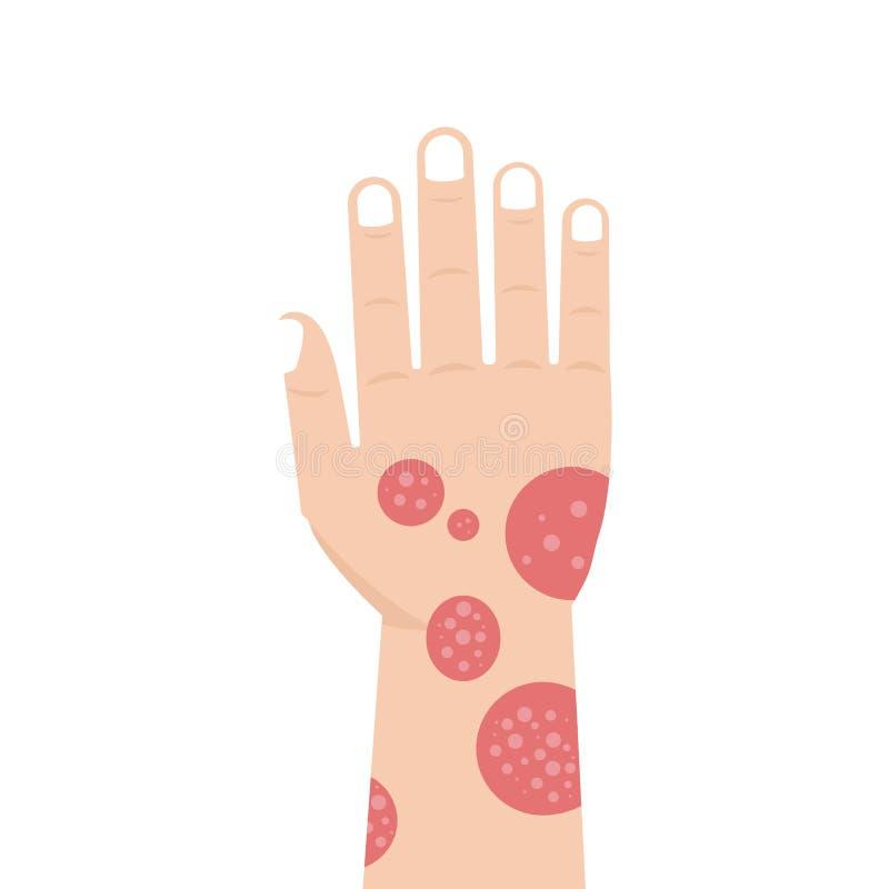 Hand med psoriasis eller eksem vektor illustrationer