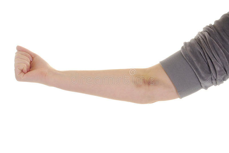 Hand met kneuzing stock afbeelding