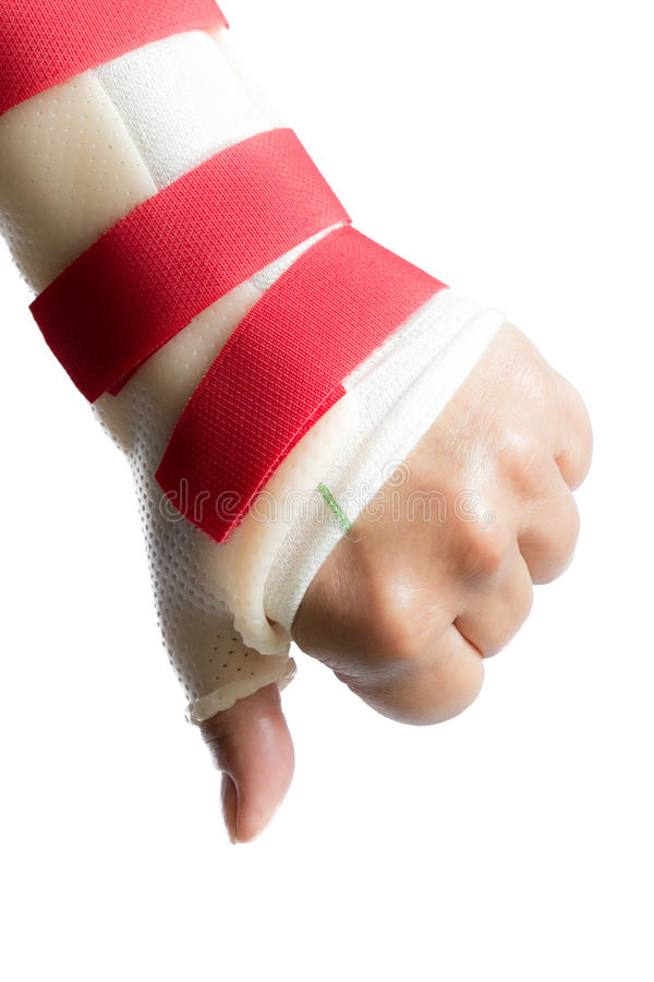 Hand met pols en duimsplinter stock foto