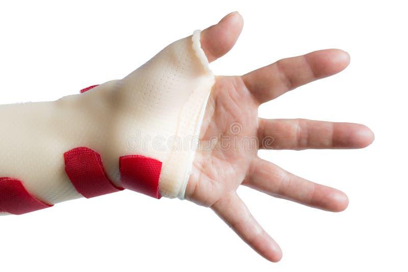 Hand met pols en duimsplinter stock afbeelding