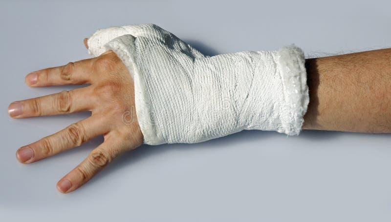 Hand mit dem Gips, zum des Handgelenkes und des Daumens stillzustellen stockfotos