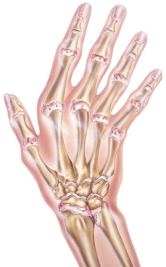 Hand och fingrar - Osteoarthritis av skarvarna stock illustrationer