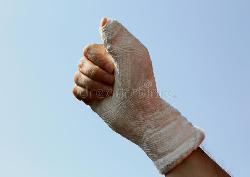 Hand and the plaster cast at the hospital with the thumb up as a royalty free stock images
