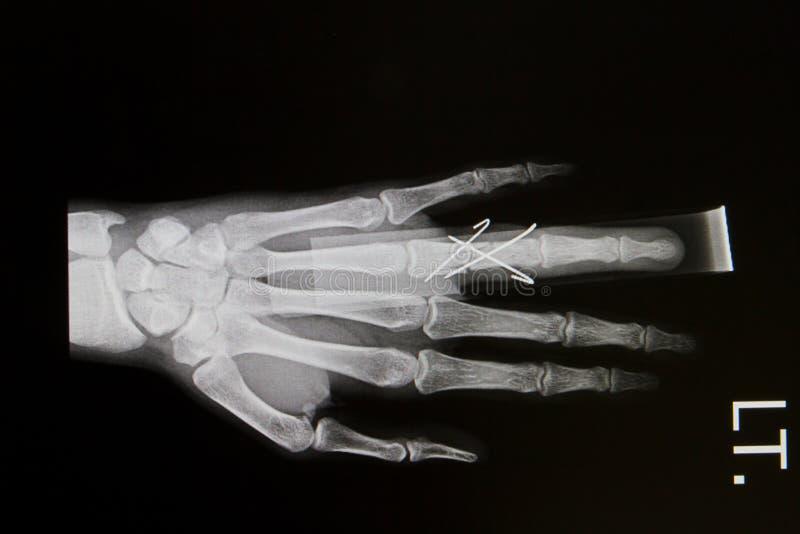 Hand röntgt Bild stockbilder