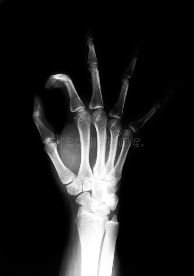 Hand radiograph royalty free stock photos