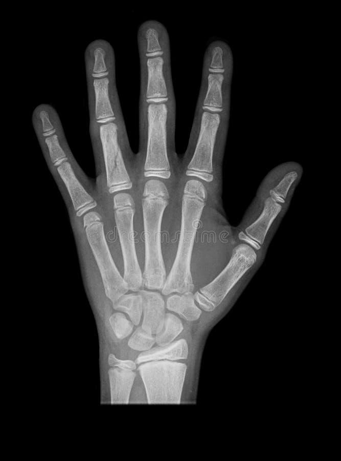 Download Hand x-ray stock photo. Image of broken, hospital, impingement - 12883304