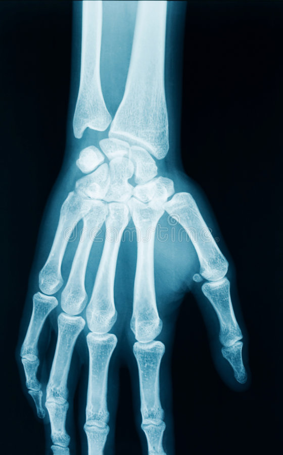 Download Hand x-ray stock image. Image of healthcare, female, hand - 9195003