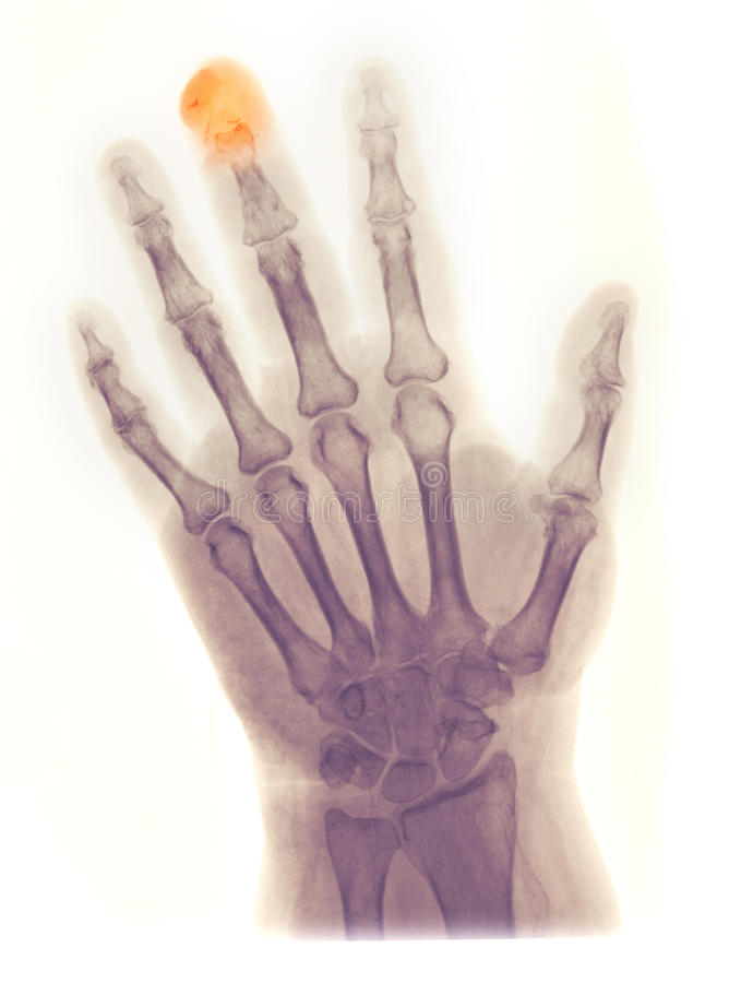 Hand X-ray, fractured/amputated distal phalanx. X-ray of the hand of a 64 year old female who got her middle finger crushed in a door and partially amputated and stock image