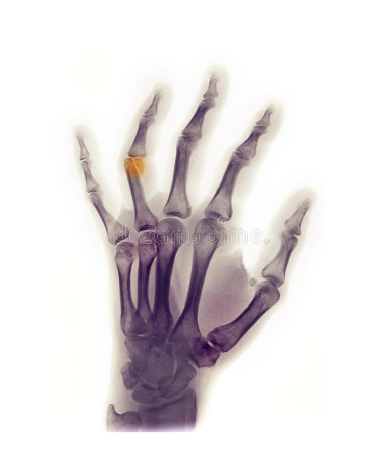 Hand x-ray showing a fracture stock photography