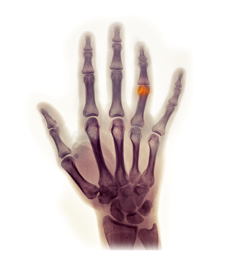 Hand x-ray showing a fracture royalty free stock image