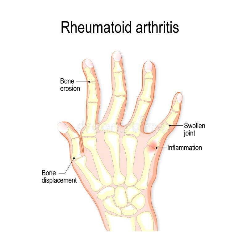 Hand with rheumatoid arthritis royalty free illustration
