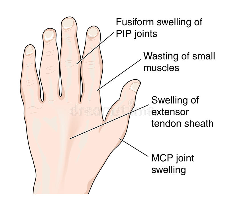 Hand showing arthritic changes royalty free illustration