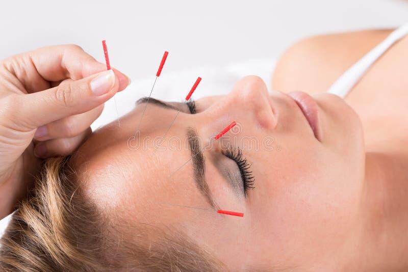Hand som utför akupunkturterapi på huvudet royaltyfri foto