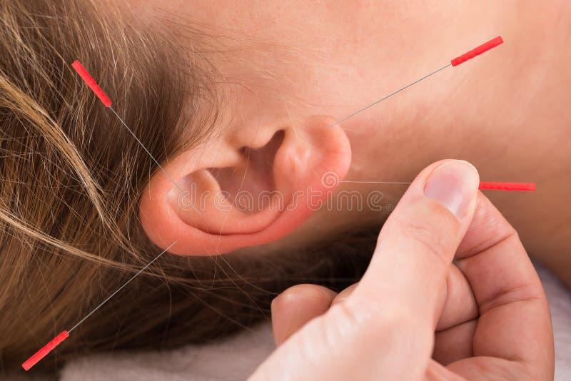 Hand som utför akupunkturterapi på ytteröran fotografering för bildbyråer