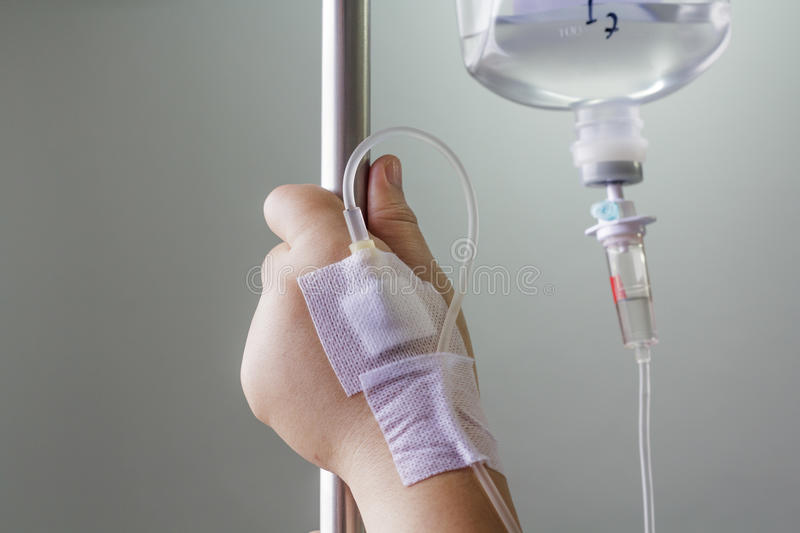 Hand swollen by saline intravenous (iv). royalty free stock photo