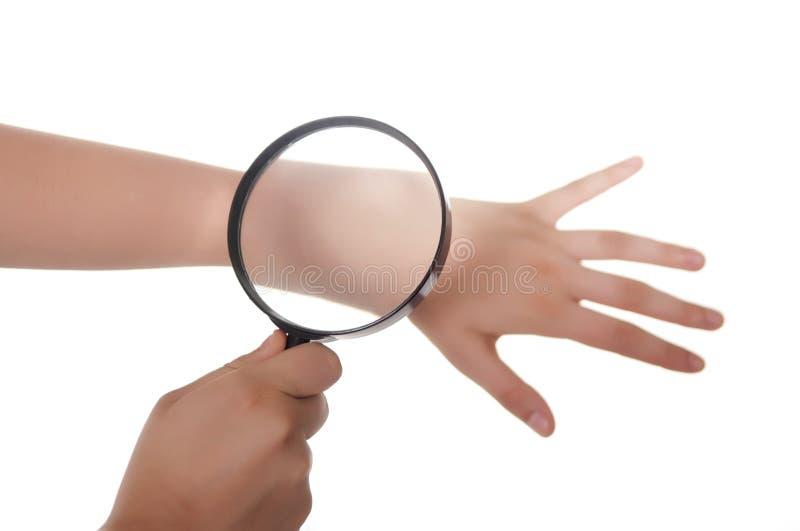 Hand, vergrootglas en huid stock foto