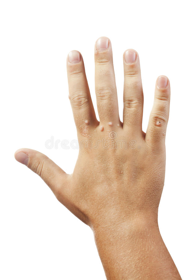 Hand with warts isolated on white stock photos