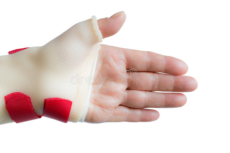 Hand with wrist and thumb splint royalty free stock photo
