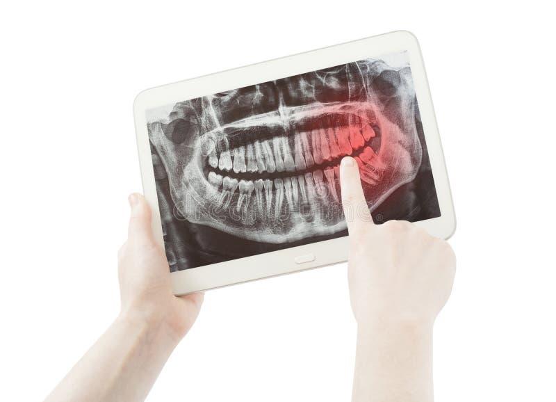 Handen die pijn op tandenradiologie of radiografie en PC-tablet tonen royalty-vrije stock foto's