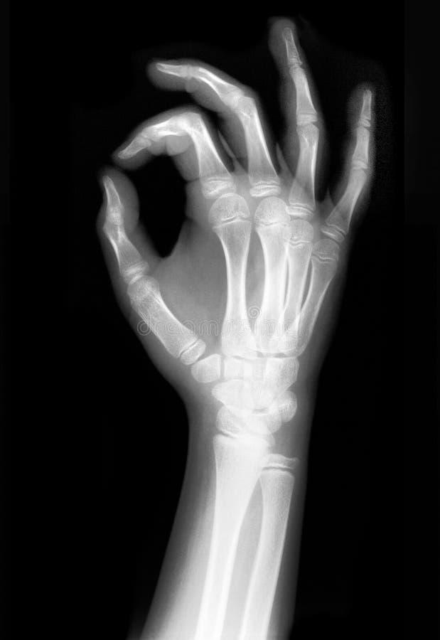 handen rayed x arkivbild