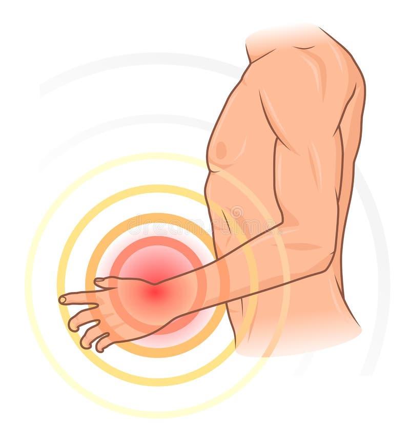 Handen smärtar stock illustrationer
